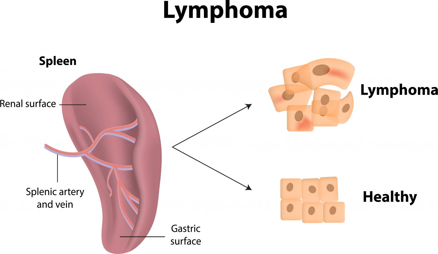 Lymphoma Symptoms What You Need To Know First Signs Of Lymphoma