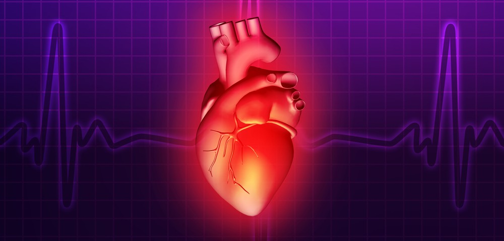 Risk of Cardiovascular Disease in Hodgkin's Lymphoma Survivors Can be Quantified