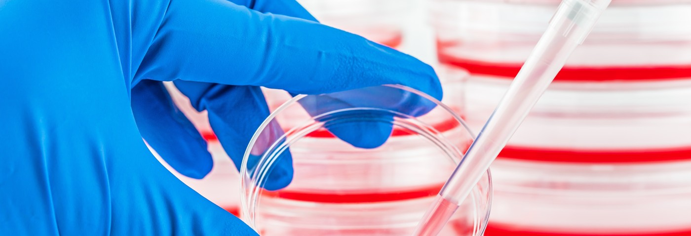 Key Precursor Blood Stem Cells for Lymphoma Therapies Identified in Mouse Study