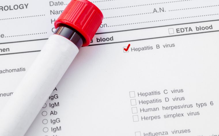 Hepatitis B and C viruses and risk of non-Hodgkin's lymphoma