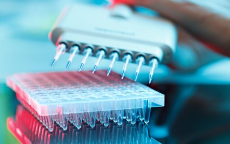 Partnership Aims to Identify DLBCL Patients Likely to Benefit from ADCT-402