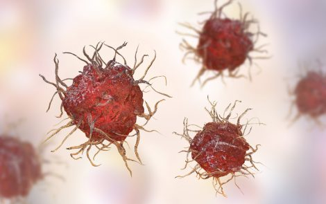 5F9-Rituxan Combo Eliminates Tumors in One-third of DLBCL, Follicular Lymphoma Patients