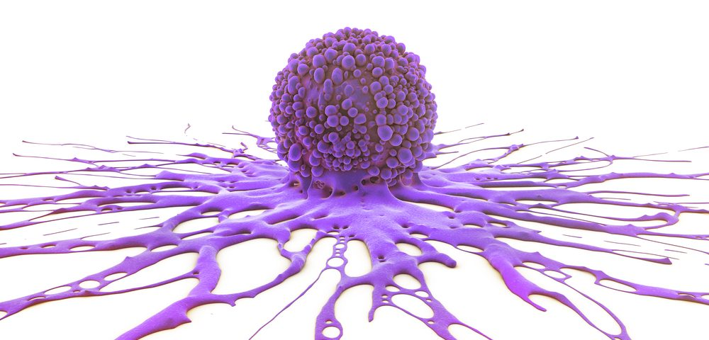 Rituxan-Revlimid Combo Effective in Treating Advanced Follicular Lymphoma, Study Shows