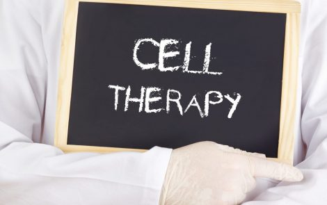 Depleting White Blood Cells Improves Response to CAR T-cell Therapy in Heavily Treated Patients, Trial Shows